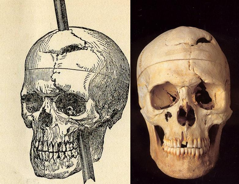 phineas gage and the role of As a class, we read the unique story of phineas gage to learn about his significant role in the history of medicine, specifically brain anatomy, physiology and surgery.